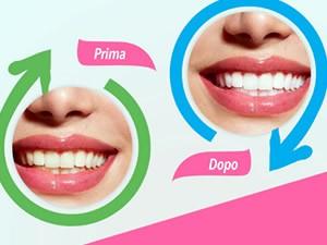 Sbiancare denti naturalmente